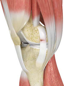 Knee Ligament Injuries