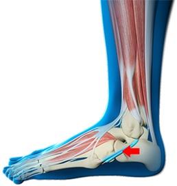 Foot Examination Northwood Foot Surgery Uxbridge Ankle