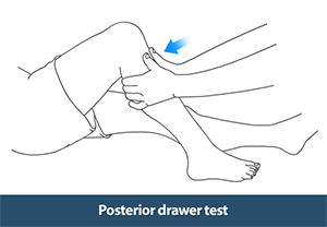 Image Result For Anterior Posterior Drawer Test Knee